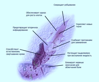Действие на рану повязки с хитозаном
